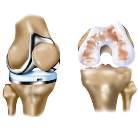 Your Orthopedic Surgeon in Hyderabad